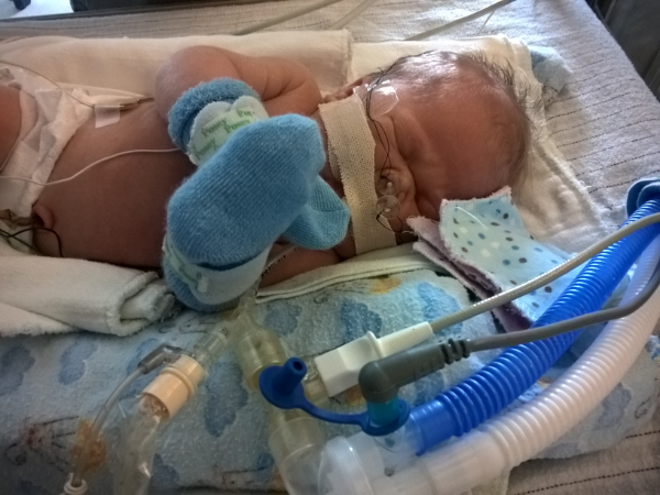 baby in nicu bed and lots of medical equipment